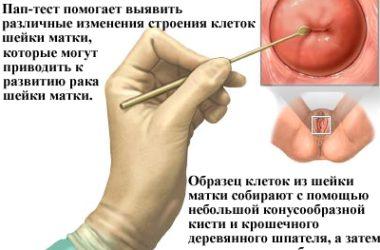 РШМ: обследования у гинеколога не реже 2 раз в год