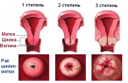 Rak-sheyki-matki-simptomy